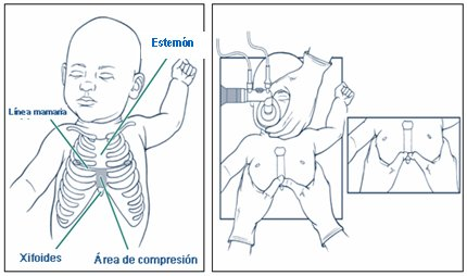 Duele de la parte izquierda con el lado de los riñones